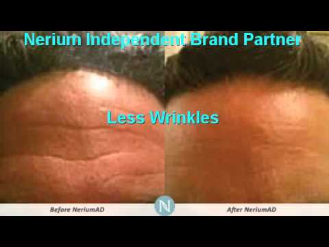 Should I Get Botox San Antonio | Nerium Better Than Botox  | 210-305-7833
