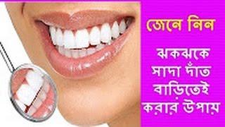 getlinkyoutube.com-White teeth whitening at home to learn how to    জেনে নিন বাড়িতেই ঝকঝকে সাদা দাঁত করার উপায়   2016