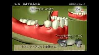 getlinkyoutube.com-米沢歯科クリニック(徳島) 歯を失った方への3つの治療方法について