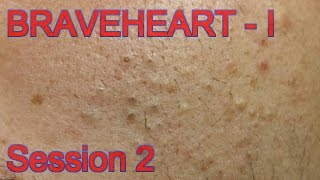 getlinkyoutube.com-Extraction for Teenage Acne - Session II - Part 1 of 2