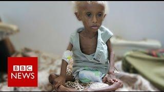Yemen: On the brink of starvation - BBC News