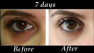 getlinkyoutube.com-How to Remove Under eye Dark Circles in 7 days | DIY Dark Circle Treatment