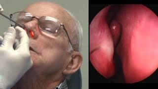 getlinkyoutube.com-In Office Balloon Sinuplasty Procedure (Dr. Thompson).mp4