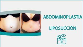 getlinkyoutube.com-Liposucción abdominoplastia asombrosos resultados Dr Torres Fortich Santiago de Compostela España