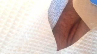 getlinkyoutube.com-Suprapubic catheter change 9/14/16