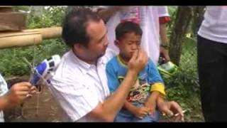 Terapi bocah perokok