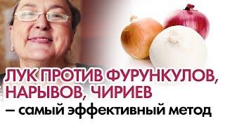 getlinkyoutube.com-ЛУК ОТ ФУРУНКУЛОВ И ЧИРИЕВ. Народный способ