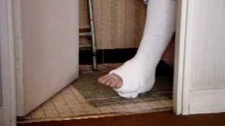 Moving toes on a plaster wamlking cast