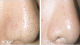 getlinkyoutube.com-How to Get Rid of Blackheads & Whiteheads At Home in 7 Days