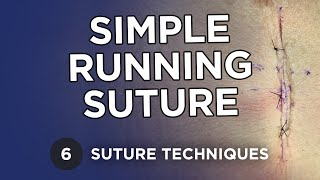 getlinkyoutube.com-Simple Running Suture - Learn Suture Techniques
