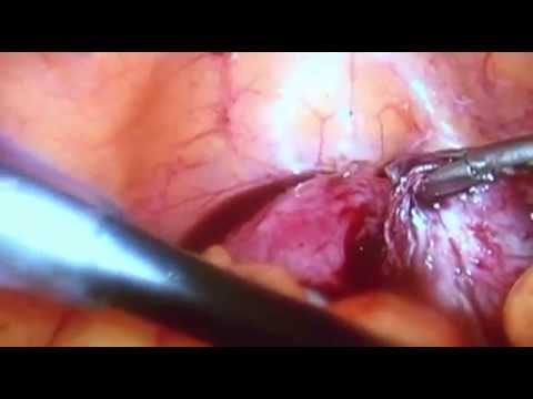 Laparoscopia para endometriose /Laparoscopy for endometriosis