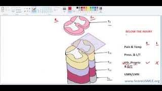 getlinkyoutube.com-Spinal Pathways MADE SUPER EASY-3 (Final)