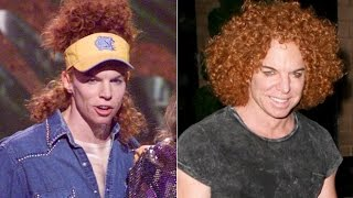 getlinkyoutube.com-Carrot Top Plastic Surgery Before and After NEW video 2016 !!