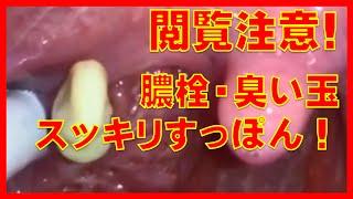 getlinkyoutube.com-閲覧注意!膿栓・臭い玉の除去映像がスッキリすっぽん!膿栓デカ過ぎ!こんなにデカい臭い玉なら臭いもかなり強烈だな!おえええ