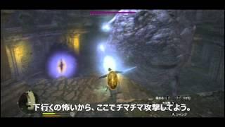 getlinkyoutube.com-【字幕プレイ】ドラゴンズドグマ:ダークアリズン Part10 「眼球」