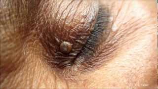 getlinkyoutube.com-Black Heads On Eyelids- Removal Technique