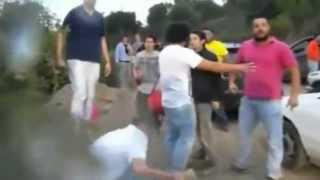 getlinkyoutube.com-Pelea tras fiesta en Talca termina con feroz piedrazo en la cara