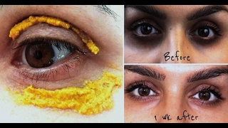 getlinkyoutube.com-3 Magical DIY MASKS to Remove Dark Circles - (Results in LIVE Video)