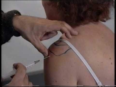 How to perform corticosteroid injections of the shoulder  by Dr. A.N. de Wolf