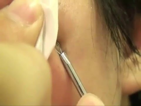 HOW TO: Romove Blackhead with a Blemish Extractor[中文字幕]