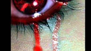 getlinkyoutube.com-أنشودة حزينه  جدا قلب الوفا مجروح  روووعه