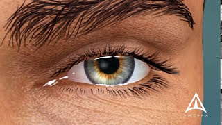 getlinkyoutube.com-What is Macular Degeneration?