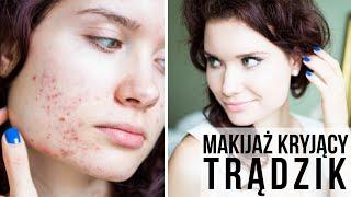 getlinkyoutube.com-Makijaż mocno kryjący na TRĄDZIK, PRZEBARWIENIA POTRĄDZIKOWE - tuszowanie niedoskonałości cery