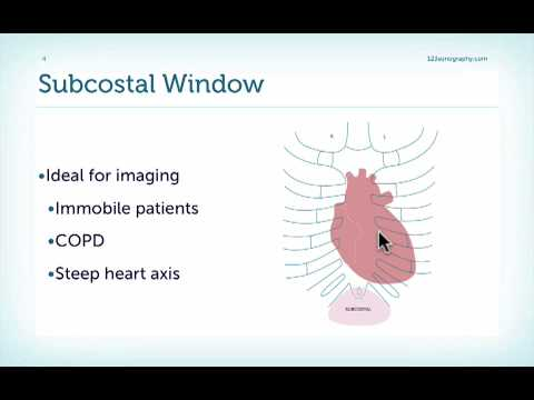 Introduction to the Subcostal View