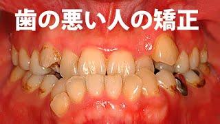 getlinkyoutube.com-謝謝台湾 30代男性 歯列矯正 治療例 受け口の顎関節症は歯列矯正で治る!ブラケット装着期間1年3ヶ月 GVBDO