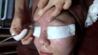getlinkyoutube.com-Vinca Beauty_獨門自創針清技術