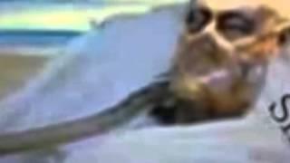 getlinkyoutube.com-İslam Düşmanı Ariel Şaron'un Komadaki Hali