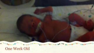 getlinkyoutube.com-Dylan Born At 28 Weeks - Our time at the NICU