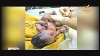 getlinkyoutube.com-الولادة القيصرية تدمر صحة المرأة !