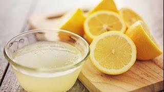 getlinkyoutube.com-خلطة طبيعية مجربة لازالة حب الشباب واثاره نهائيا باستعمال الليمون