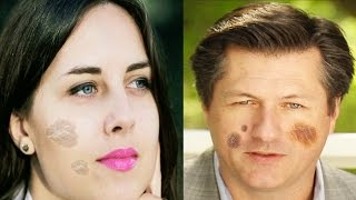 getlinkyoutube.com-चेहरे के काले दाग धब्बे हटाएँ | Special Remedies For Dark Spot on Face | Subtitles English