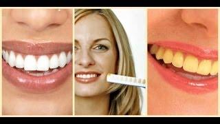 getlinkyoutube.com-تخلصي من صفار الأسنان سريعا ( تبييض الأسنان )