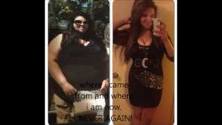 getlinkyoutube.com-Gastric Bypass surgey before and after 1 year