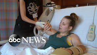 getlinkyoutube.com-Lindsay Ess' Story Part 1: Quadruple Amputee Undergoes Double Hand Transplant Surgery