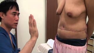 getlinkyoutube.com-高須クリニック  お腹の脂肪吸引+たるみ取り手術手術直後映像②起きた状態 腹部リダクション手術 美容整形外科動画
