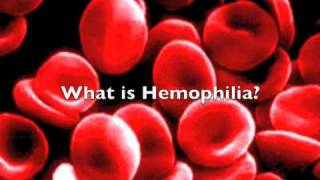 getlinkyoutube.com-Hemophilia The Royal Disease