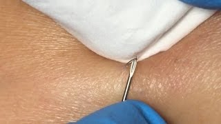 getlinkyoutube.com-Ingrown Hairs Extraction - 16 minutes