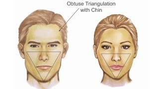 getlinkyoutube.com-Facial Feminization: Systematic Review– Jeffrey H. Spiegel, MD, FACS