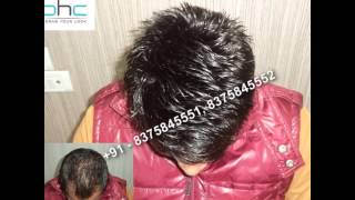 getlinkyoutube.com-Hair bonding in Delhi Ncr Noida Gurgaon India