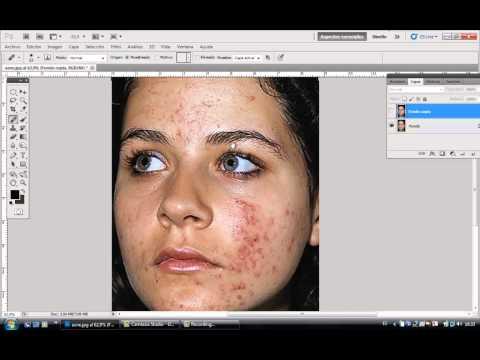 Como limpiar una cara con Photoshop paso a paso