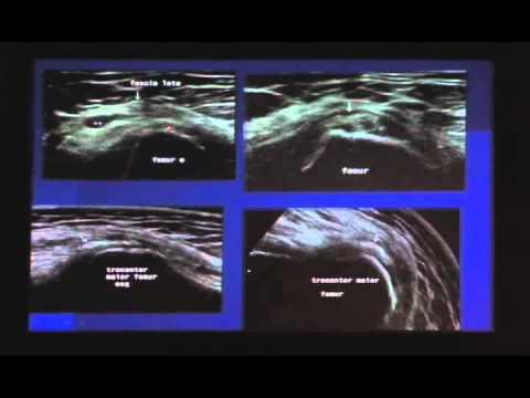 Simpósio Músculo/Esquelético Novotel RS 17/07/2010 Parte 6 (Quadril)