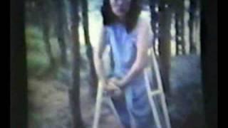 getlinkyoutube.com-Nicole RAK female right above the knee amputee