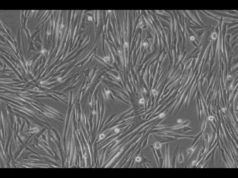 Differentiation of MM14 skeletal muscle cells.
