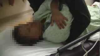 getlinkyoutube.com-Rib Dislocation Emergency