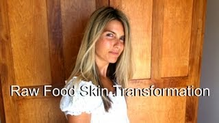getlinkyoutube.com-Raw Food Skin Before & After 801010 Transformation (photos)