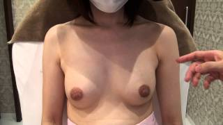 getlinkyoutube.com-高須クリニック 豊胸手術後6カ月の経過 起きた状態 効果、腫れ、痛み、ダウンタイム、感触、自然さについて 美容整形外科動画